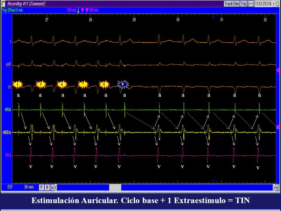 Estimulación Auricular. Ciclo base + 1 Extraestímulo = TIN