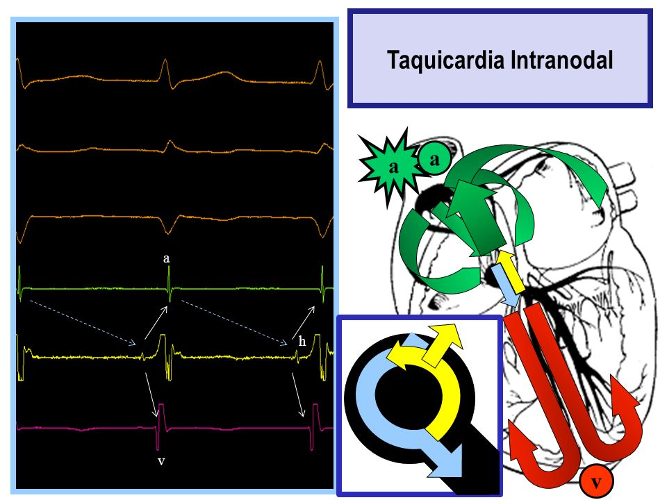 Taquicardia Intranodal