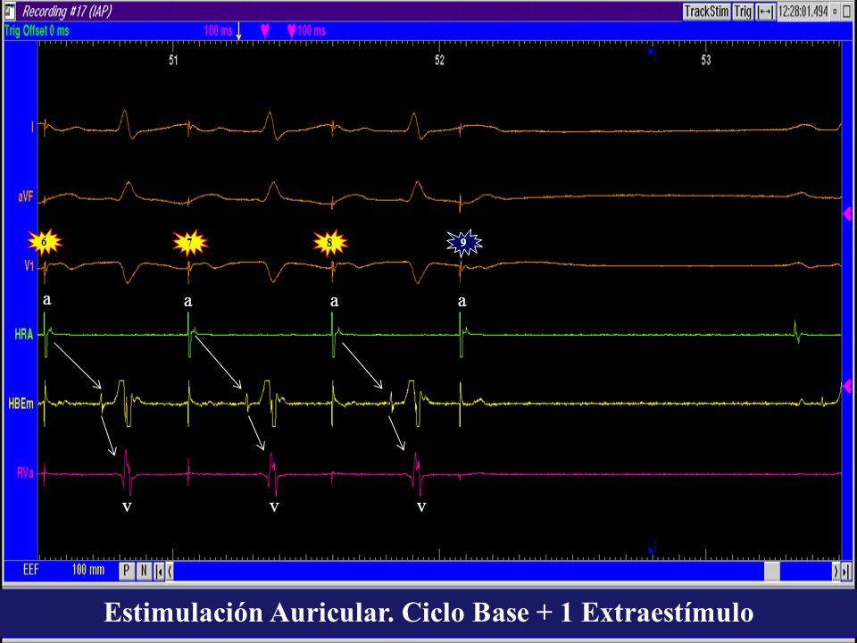 Estimulación Auricular. Ciclo Base + 1 Extraestímulo