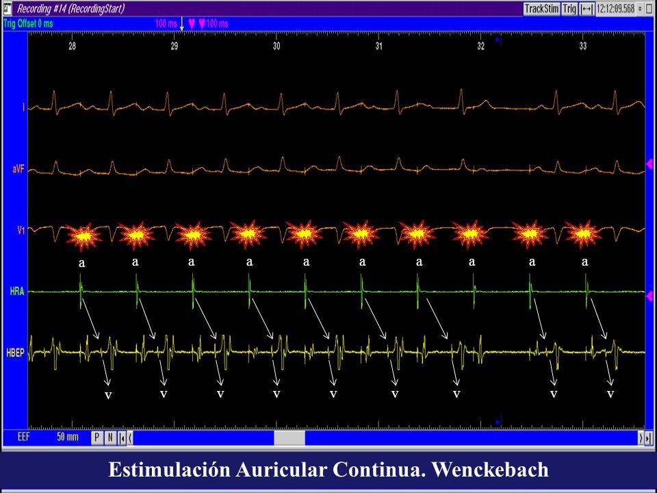 Estimulación Auricular Continua. Wenckebach