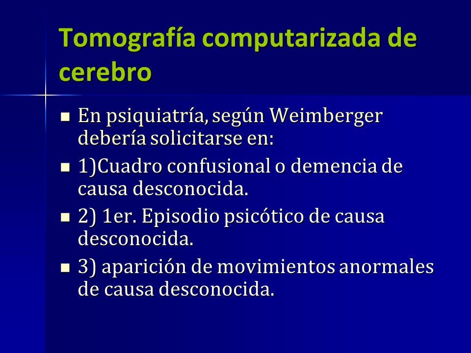 Tomografía computarizada de cerebro
