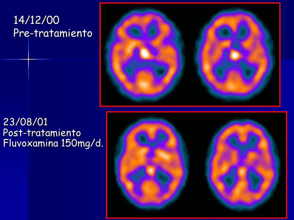 14/12/00 Pre-tratamiento 23/08/01 Post-tratamiento
