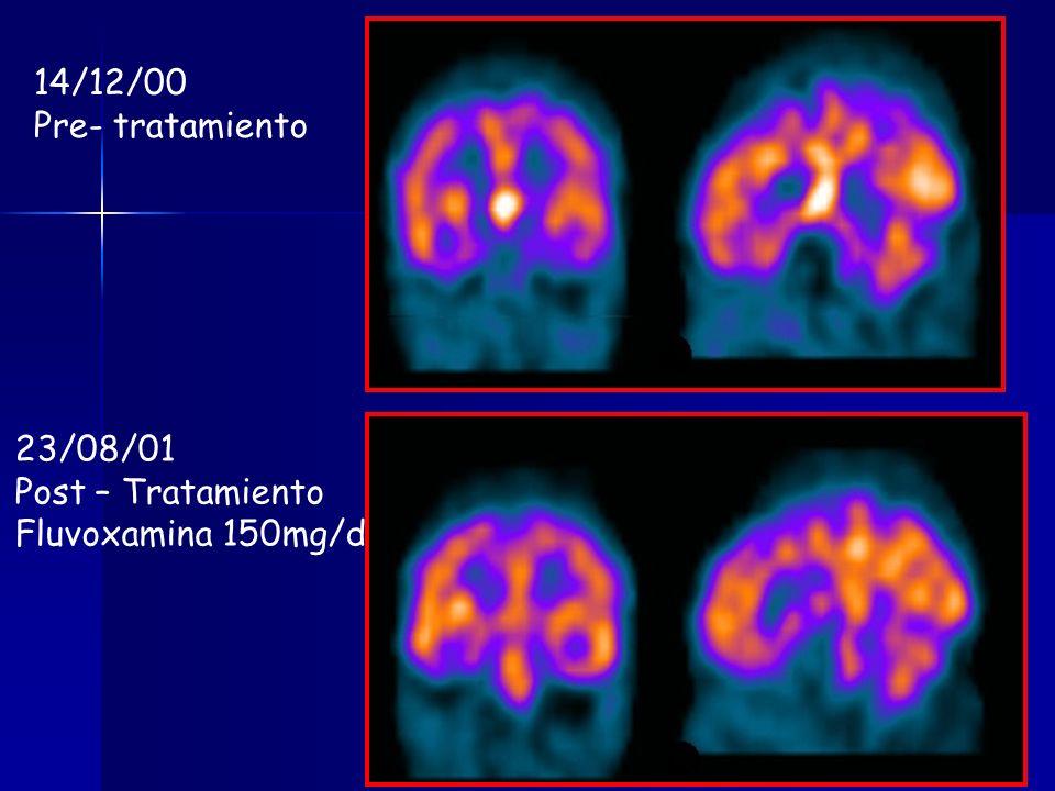 14/12/00 Pre- tratamiento 23/08/01 Post – Tratamiento Fluvoxamina 150mg/d