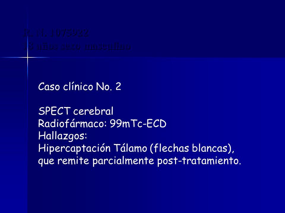 R. N. 1075922 18 años sexo masculino Caso clínico No. 2 SPECT cerebral