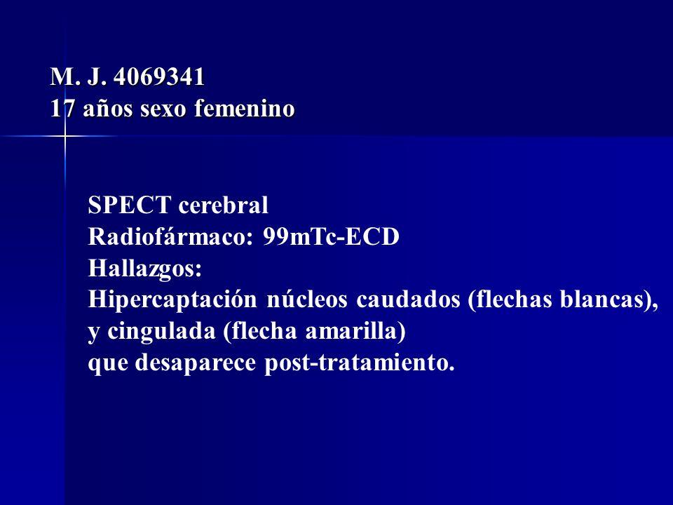 M. J. 406934117 años sexo femenino. SPECT cerebral. Radiofármaco: 99mTc-ECD. Hallazgos: Hipercaptación núcleos caudados (flechas blancas),