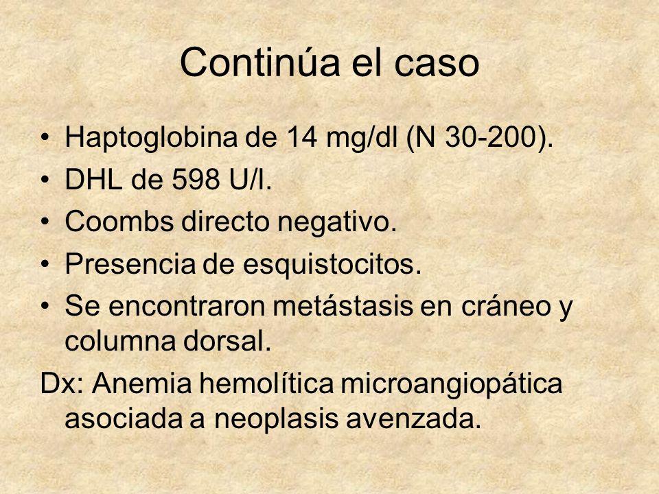 Continúa el caso Haptoglobina de 14 mg/dl (N 30-200). DHL de 598 U/l.