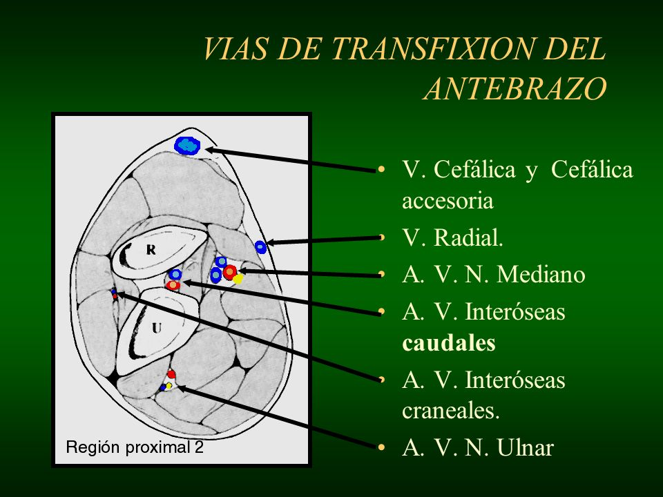 VIAS DE TRANSFIXION DEL ANTEBRAZO