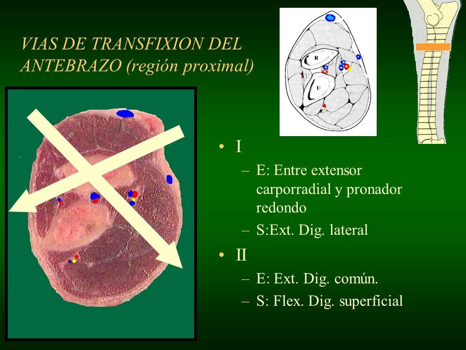 VIAS DE TRANSFIXION DEL ANTEBRAZO (región proximal)