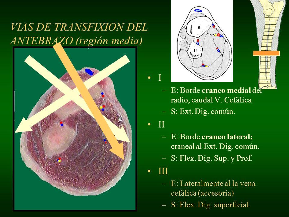 VIAS DE TRANSFIXION DEL ANTEBRAZO (región media)