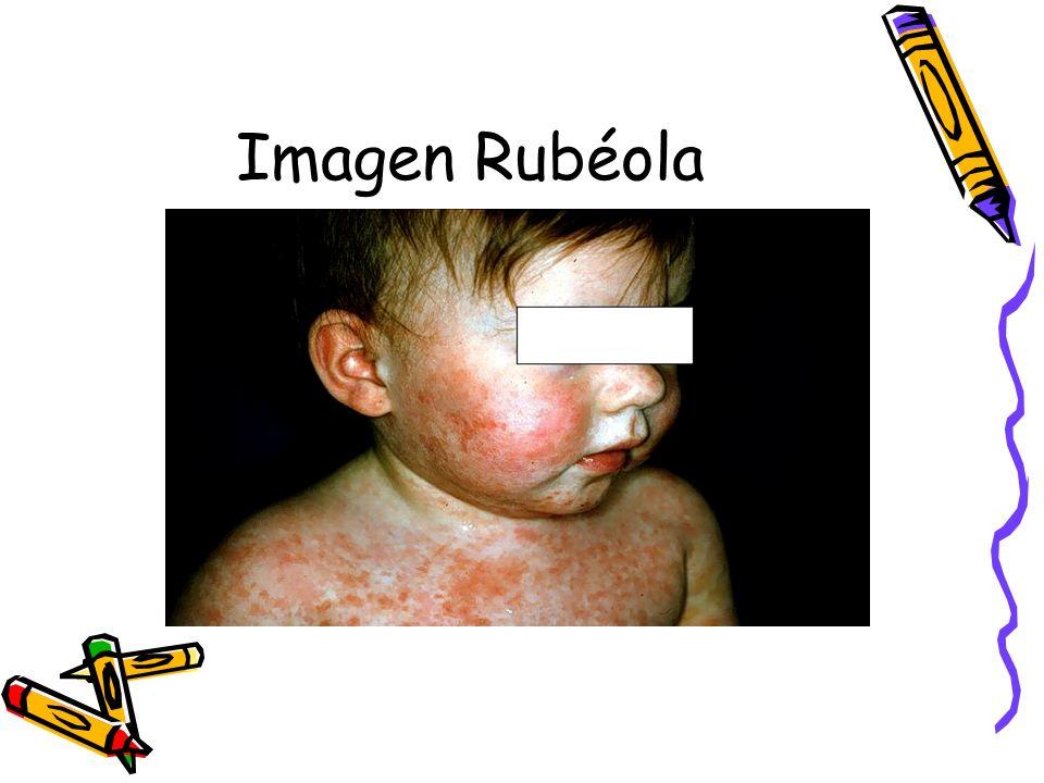 Imagen Rubéola