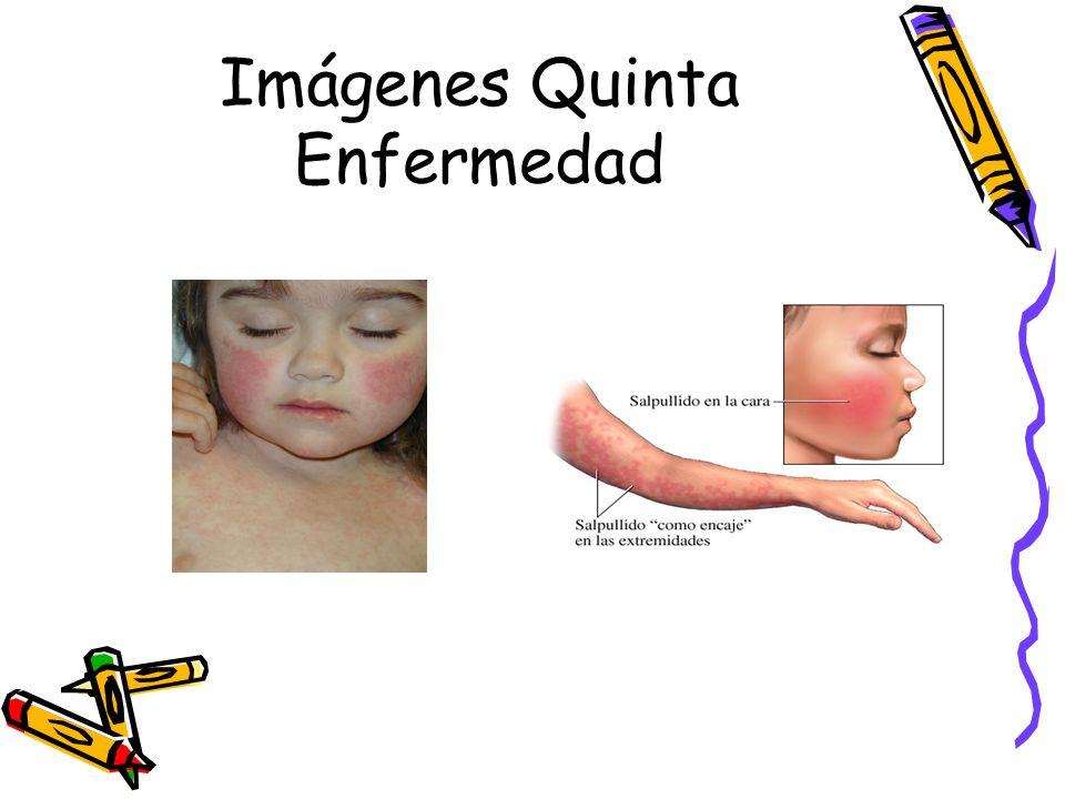 Imágenes Quinta Enfermedad