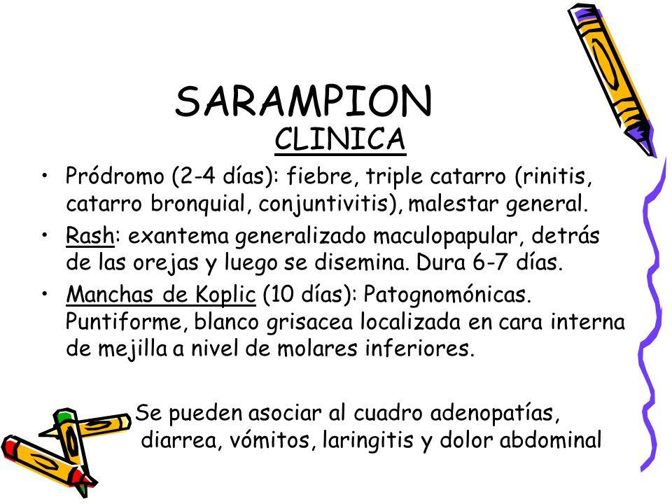 SARAMPION CLINICA. Pródromo (2-4 días): fiebre, triple catarro (rinitis, catarro bronquial, conjuntivitis), malestar general.
