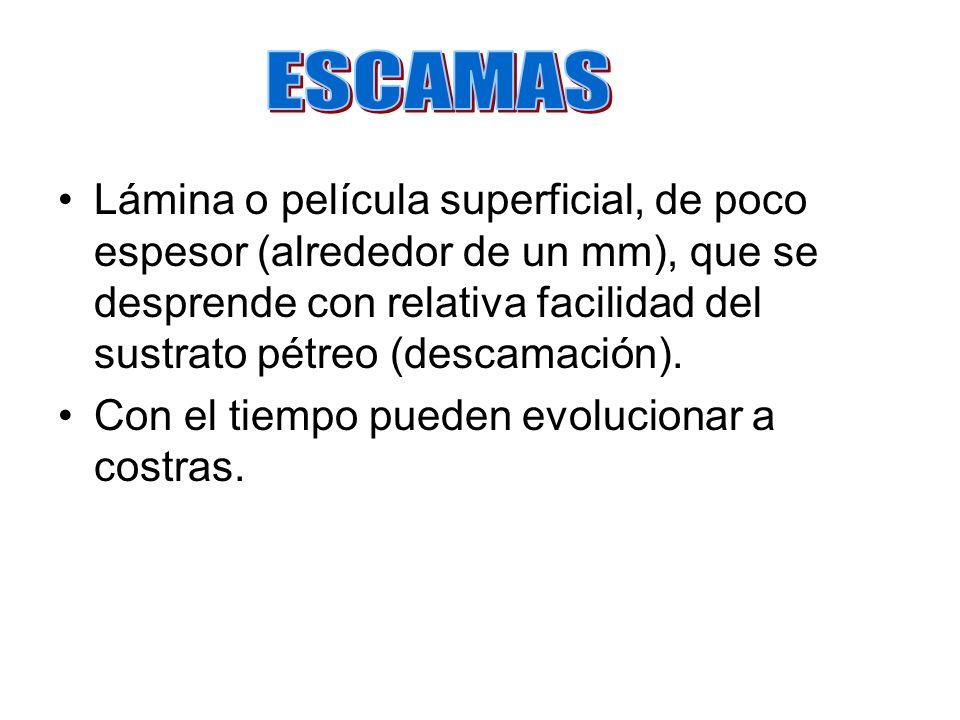ESCAMAS