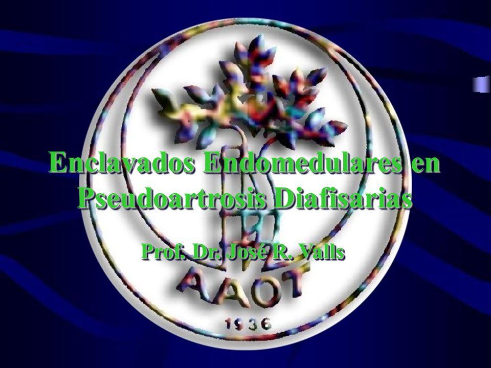 Enclavados Endomedulares en Pseudoartrosis Diafisarias