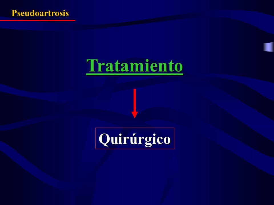 Pseudoartrosis Tratamiento Quirúrgico