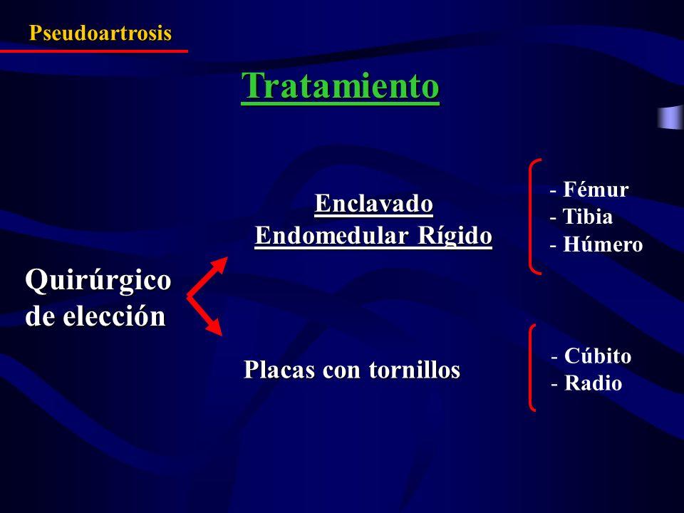 Enclavado Endomedular Rígido