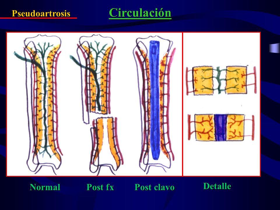Circulación Pseudoartrosis Normal Post clavo Post fx Detalle