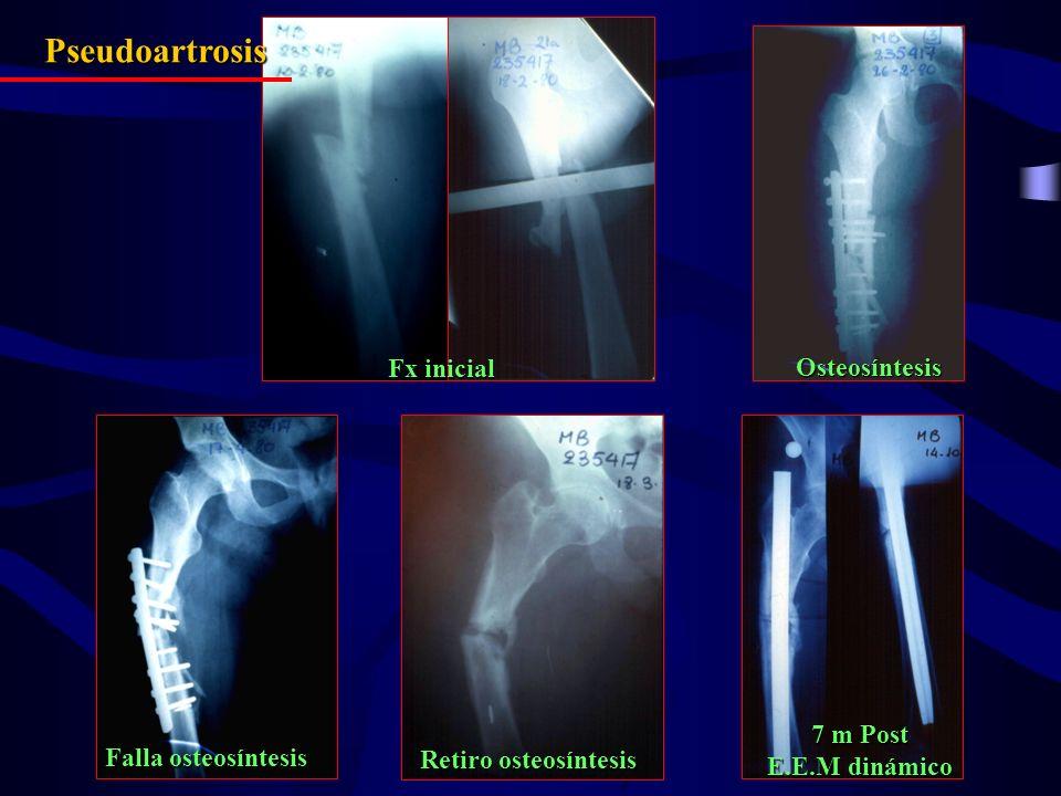 Pseudoartrosis Fx inicial Osteosíntesis 7 m Post E.E.M dinámico