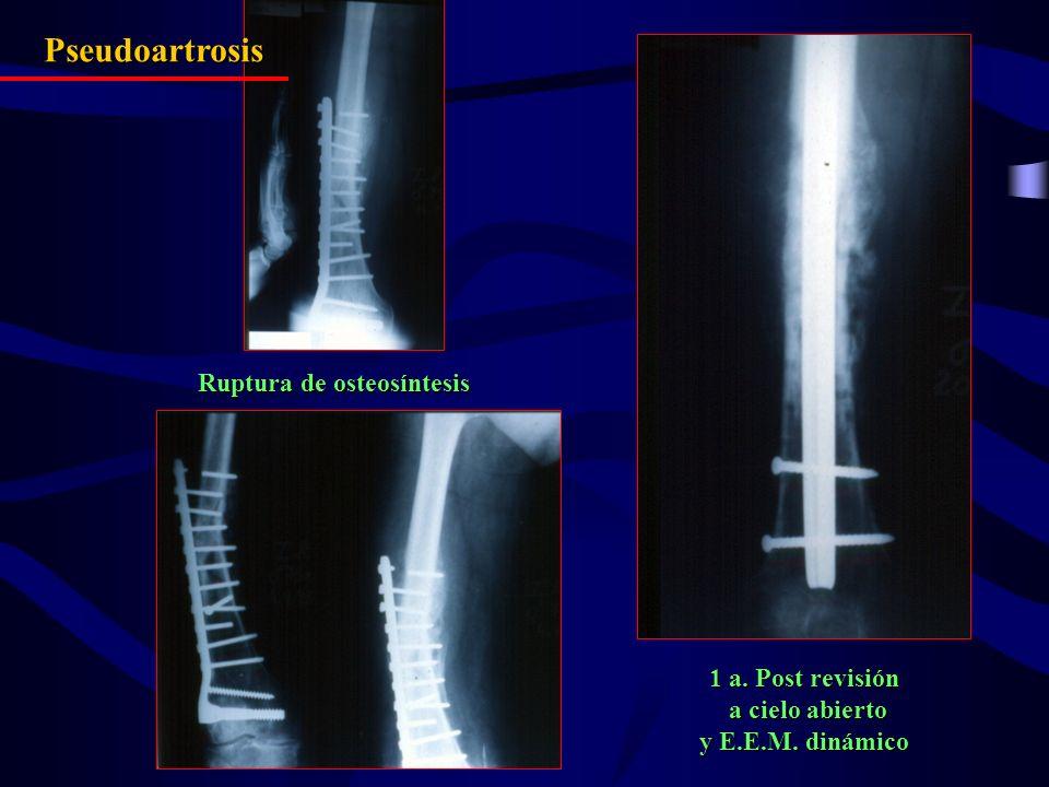 Ruptura de osteosíntesis