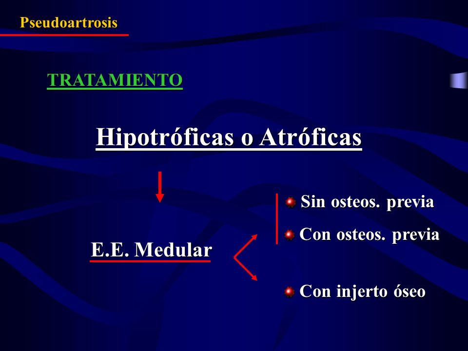 Hipotróficas o Atróficas