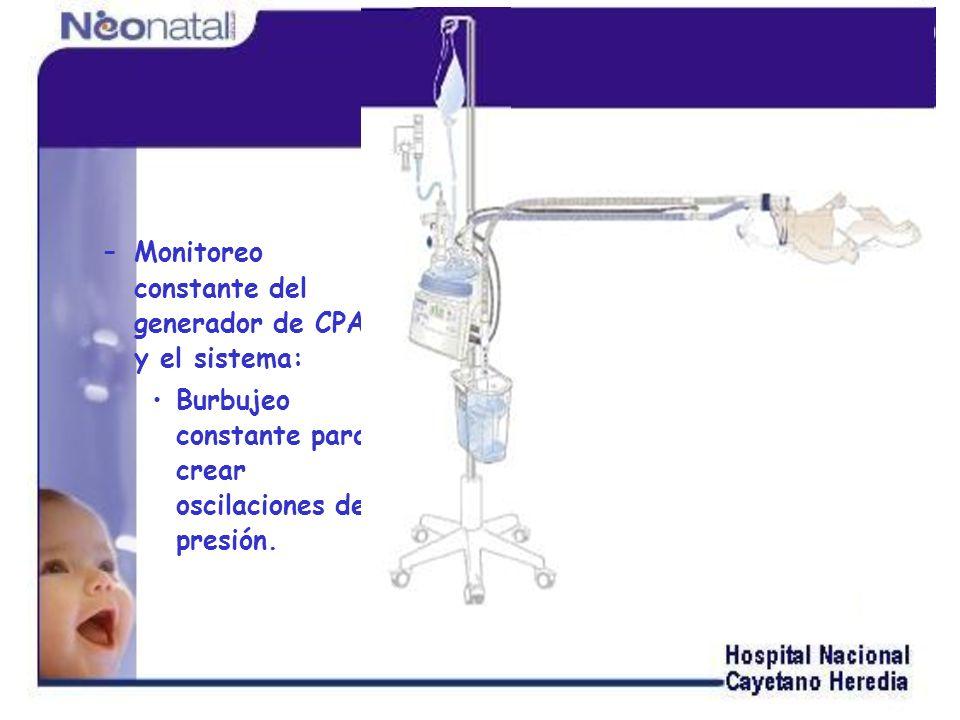 Monitoreo constante del generador de CPAP y el sistema: