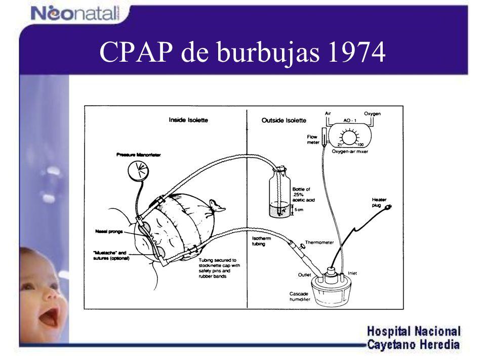 CPAP de burbujas 1974