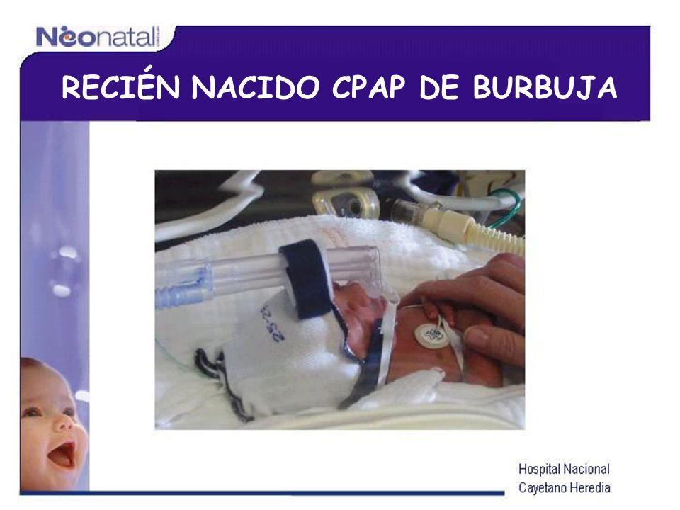 RECIÉN NACIDO CPAP DE BURBUJA