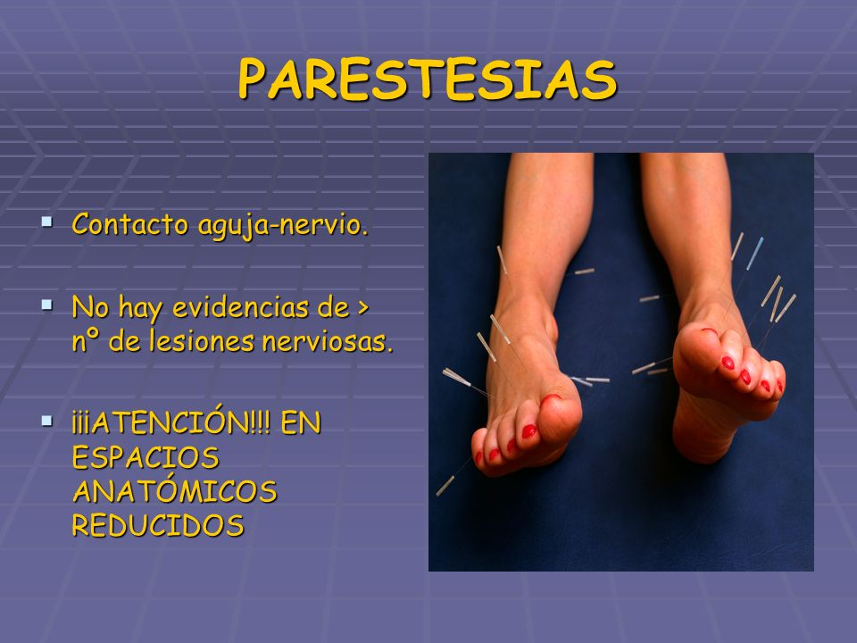 PARESTESIAS Contacto aguja-nervio.