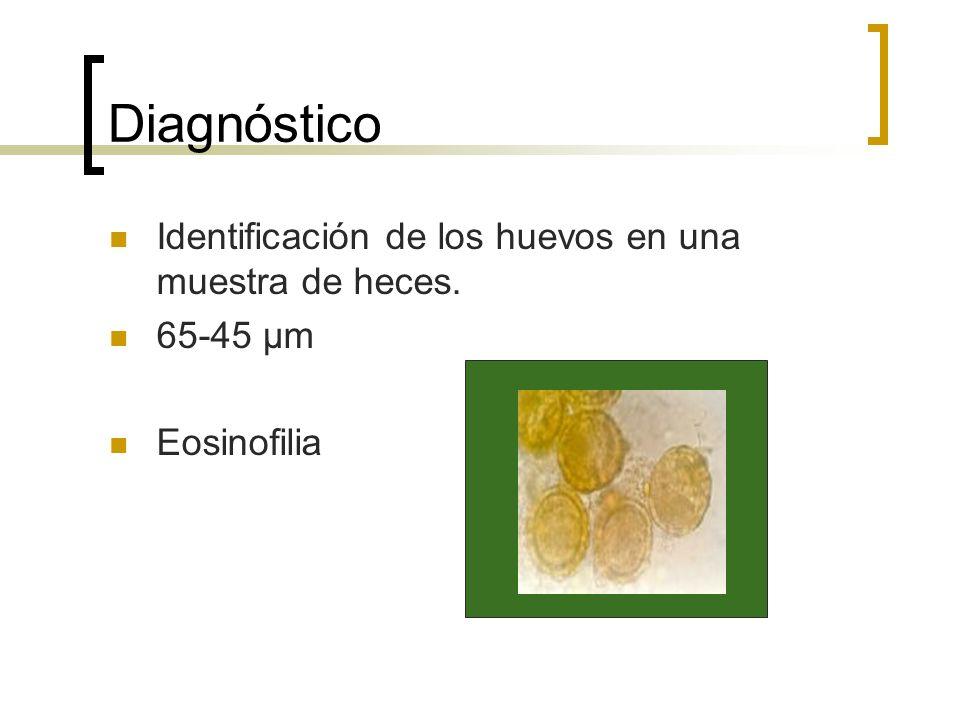 Diagnóstico Identificación de los huevos en una muestra de heces.