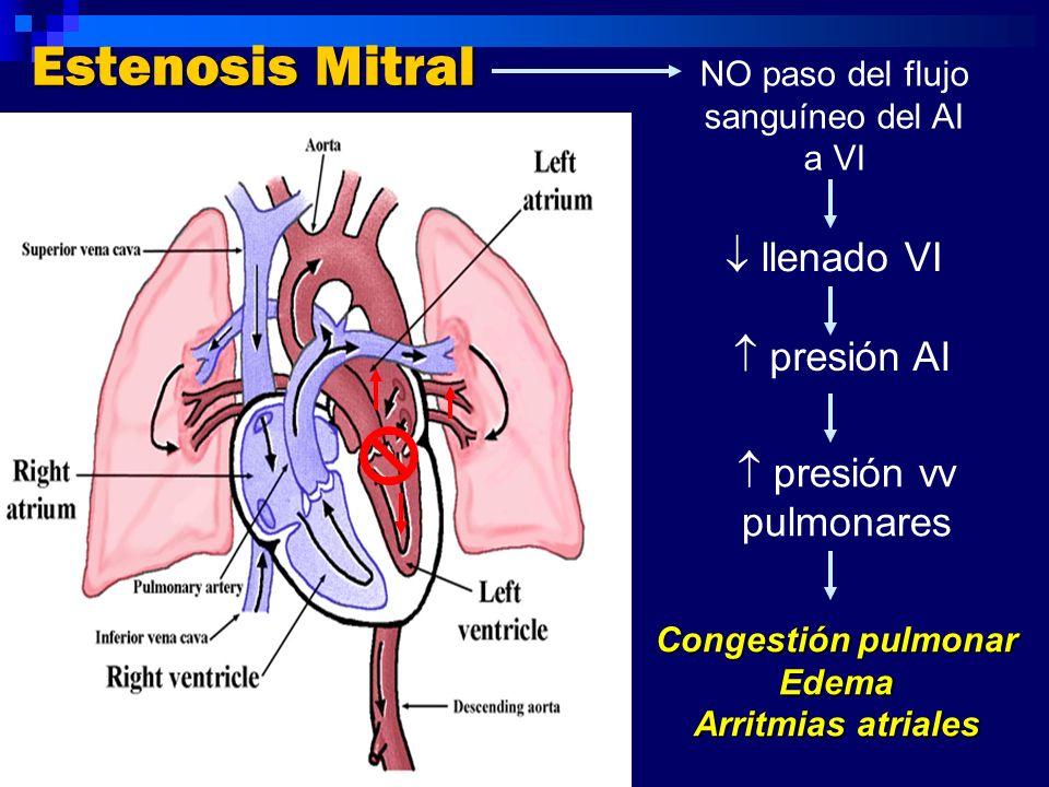 Estenosis Mitral  llenado VI  presión AI  presión vv pulmonares
