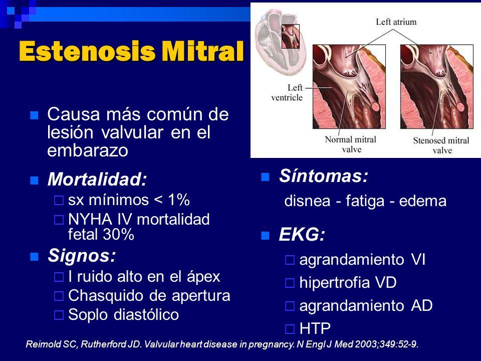 Estenosis Mitral Causa más común de lesión valvular en el embarazo
