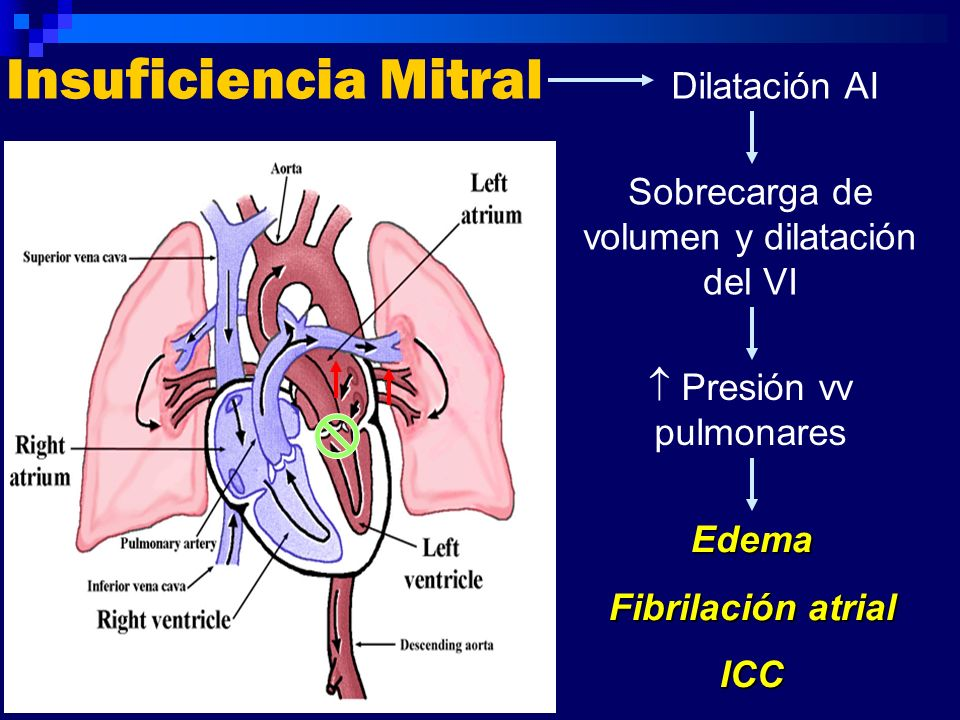 Insuficiencia Mitral Dilatación AI
