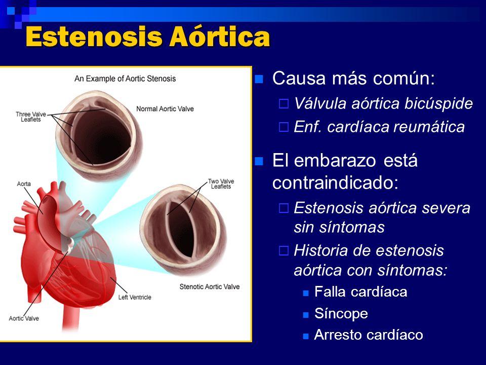 Estenosis Aórtica Causa más común: El embarazo está contraindicado: