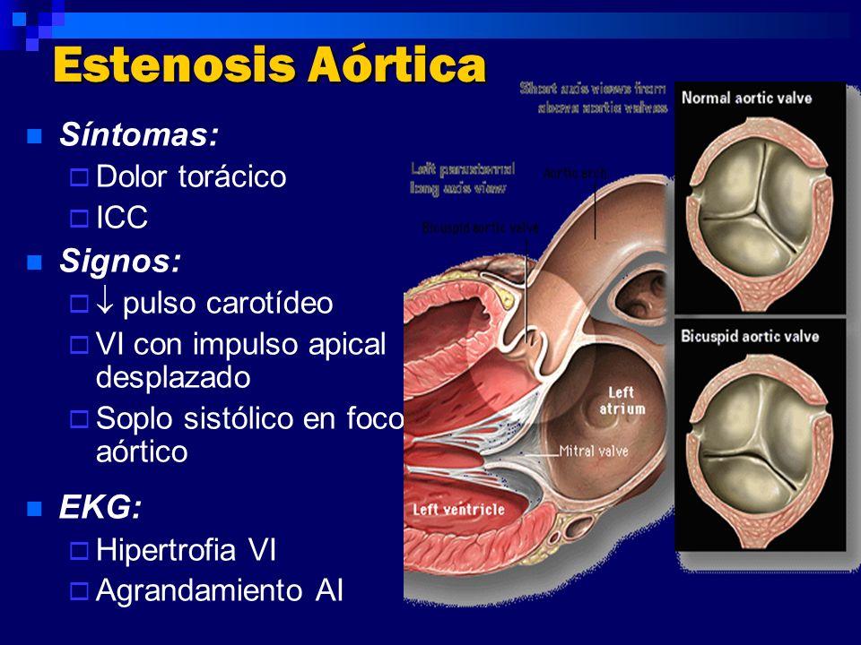 Estenosis Aórtica Síntomas: Signos: EKG: Dolor torácico ICC