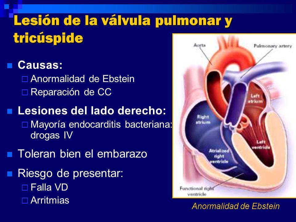 Lesión de la válvula pulmonar y tricúspide