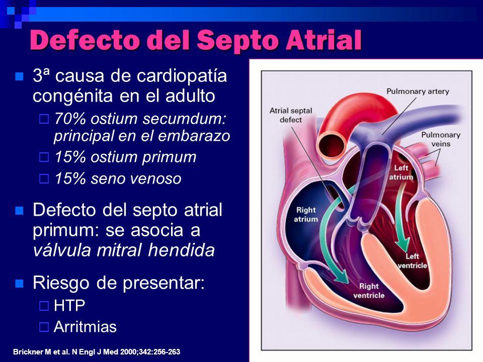 Defecto del Septo Atrial