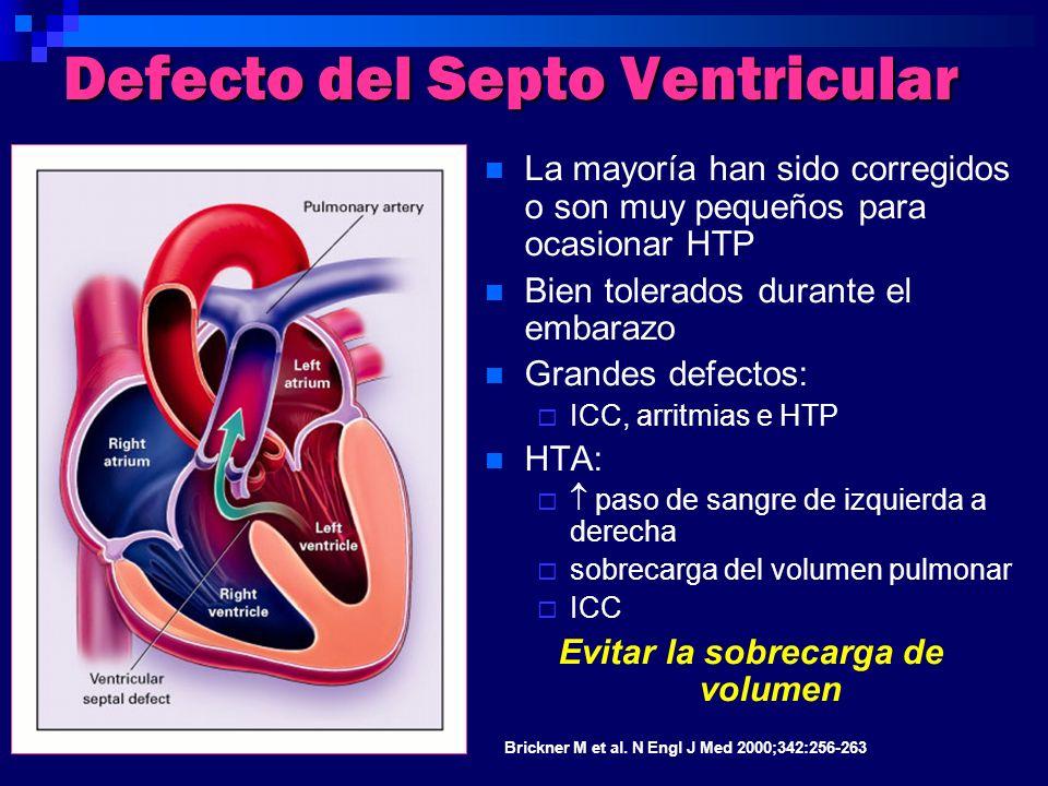 Defecto del Septo Ventricular