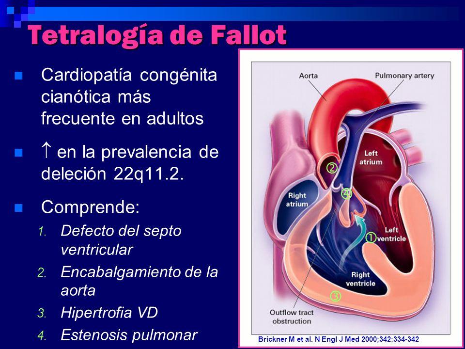 Tetralogía de Fallot Cardiopatía congénita cianótica más frecuente en adultos.  en la prevalencia de deleción 22q11.2.