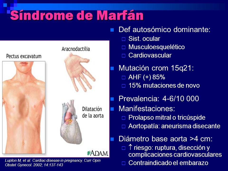 Síndrome de Marfán Def autosómico dominante: Mutación crom 15q21: