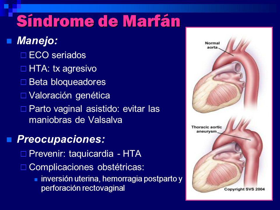 Síndrome de Marfán Manejo: Preocupaciones: ECO seriados