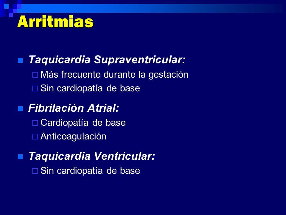 Arritmias Taquicardia Supraventricular: Fibrilación Atrial: