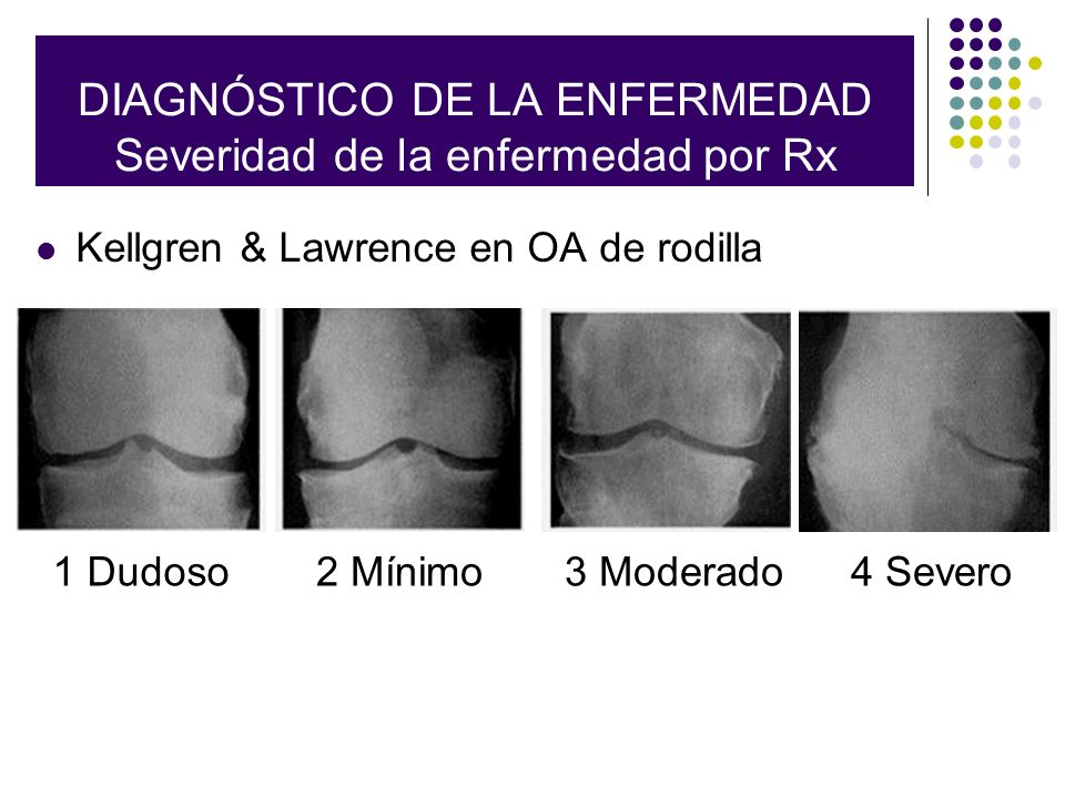 Radiographic Classification