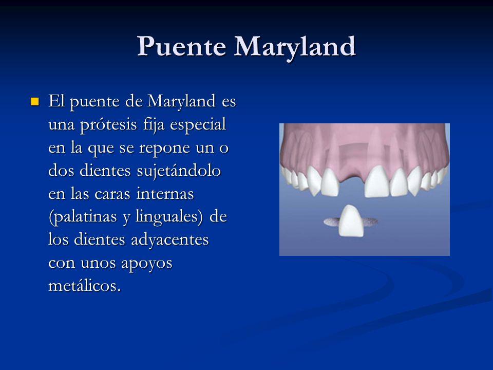 Puente Maryland