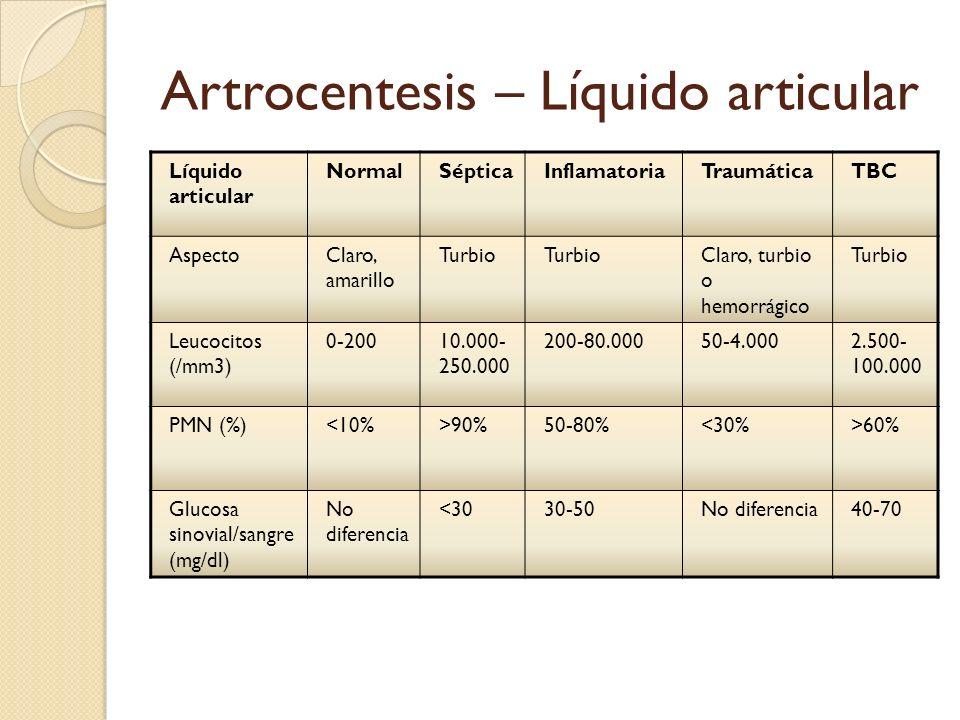 Artrocentesis – Líquido articular