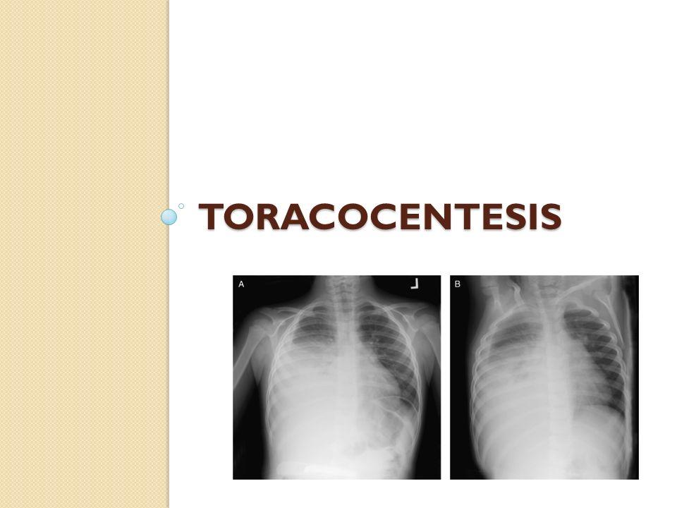 Toracocentesis