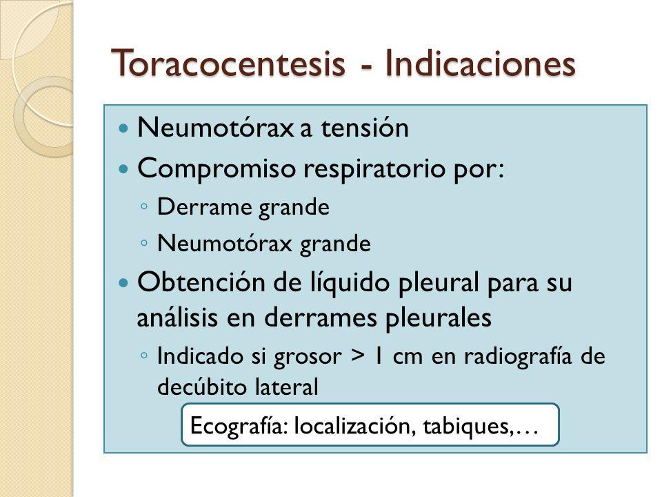 Toracocentesis - Indicaciones