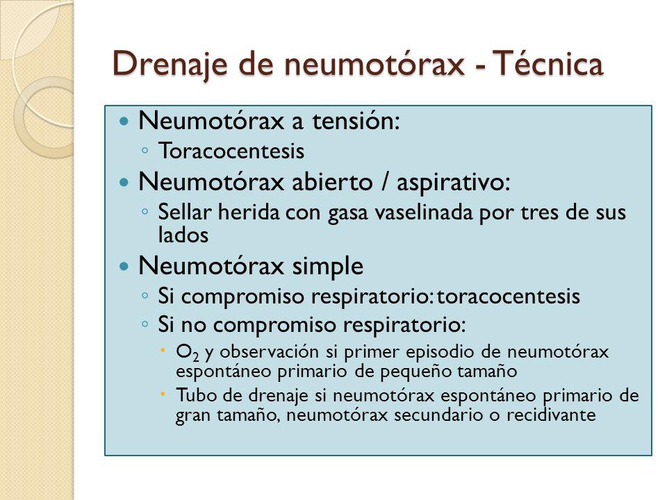 Drenaje de neumotórax - Técnica