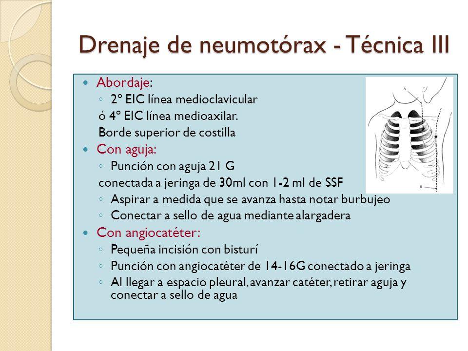 Drenaje de neumotórax - Técnica III
