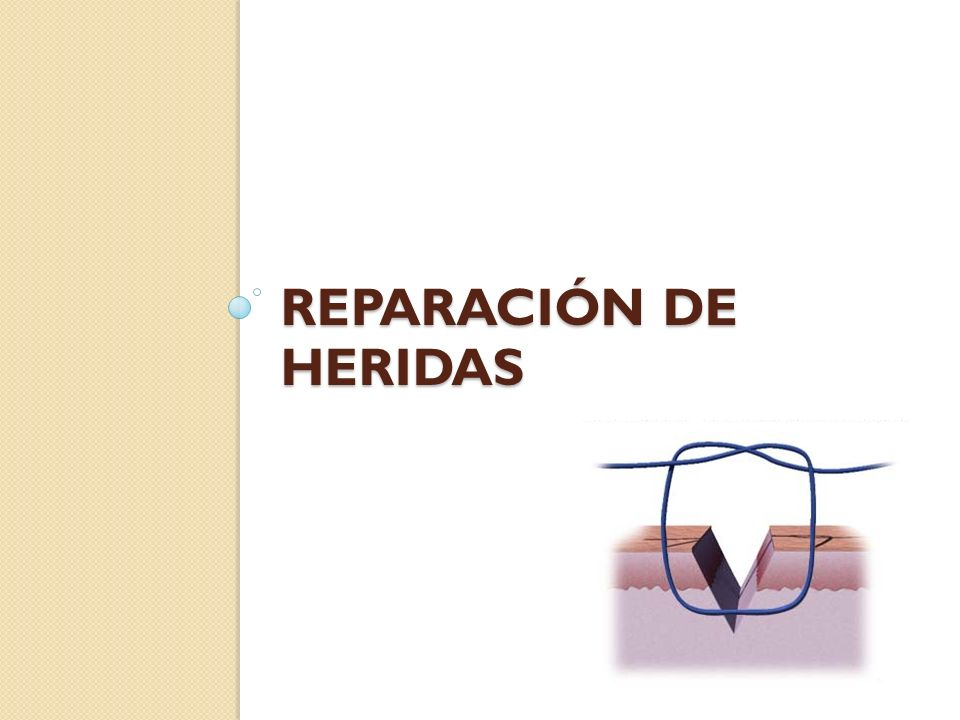 Reparación de heridas