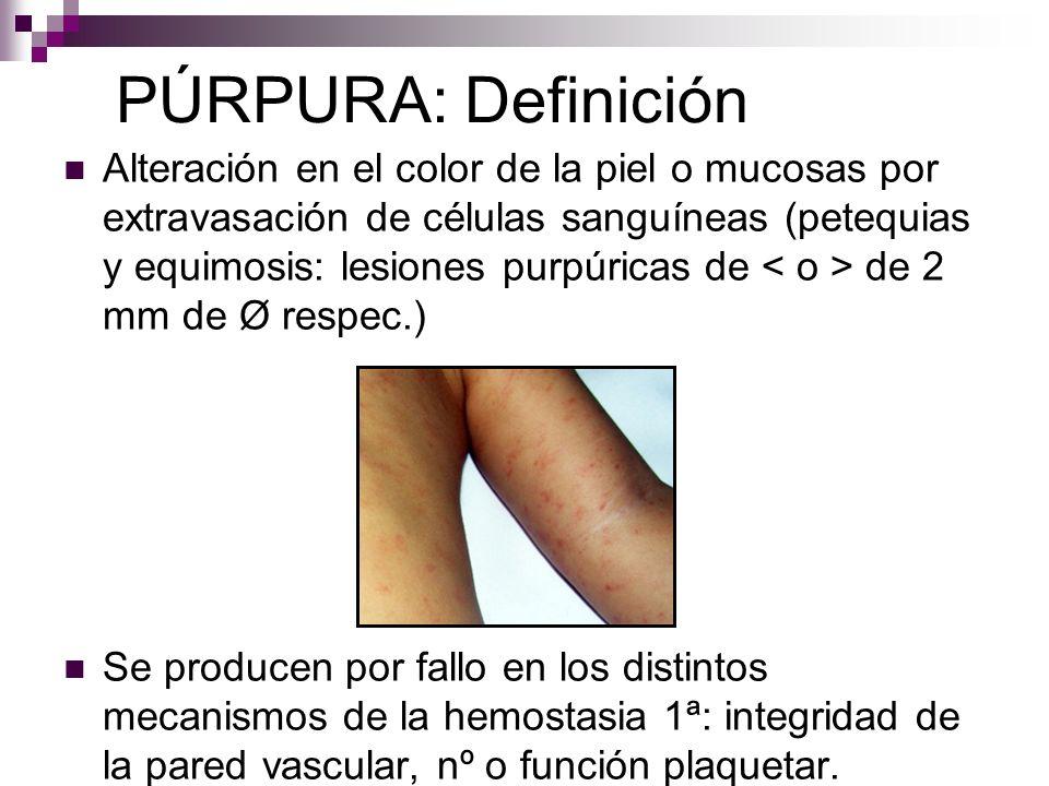 PÚRPURA: Definición